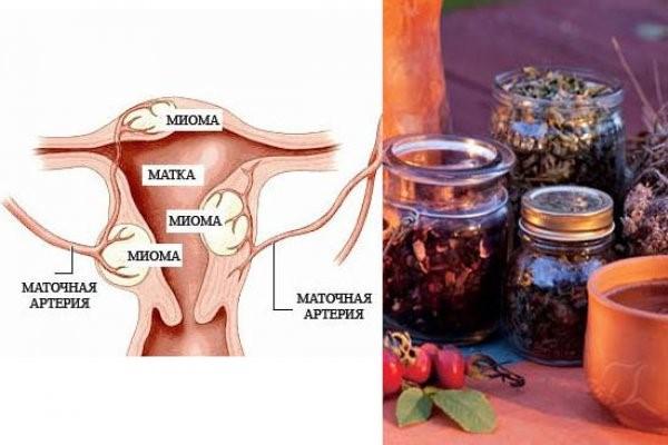 Монастырский сбор при миоме и других гинекологических заболеваниях
