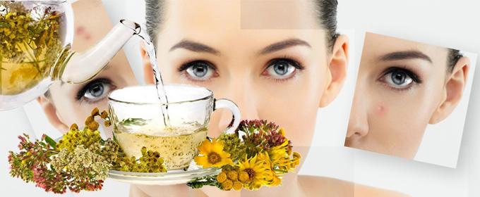 Монастырский чай от прыщей состав в домашних условиях