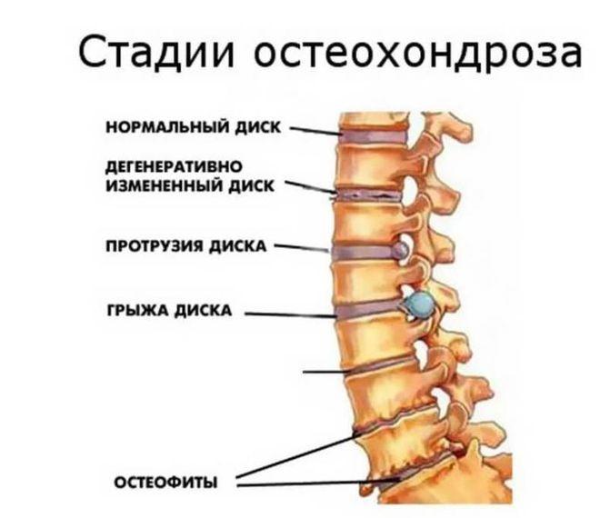 Уникальное лечение шейного остеохондроза